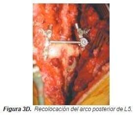 Recolocación del arco posterior de L5