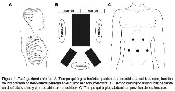 Esofagectomía híbrida