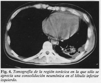 Drenaje Quirúrgico Cervicotorácico, lóbulo inferior izquierdo
