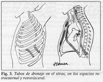Tubos de drenaje en el tórax