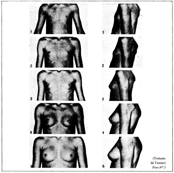 Estudios epidemiológicos sobre maduración sexual