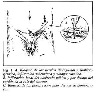 Bloqueo de los nervios ilioinguinal e iliohipogástrico