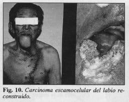 Carcinoma escamocelular del labio - Colgajo Musculocutáneo del Pectoral