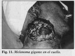 Melanoma gigante en el cuello - Colgajo Musculocutáneo