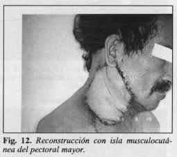 Reconstrucción con isla musculocutánea del pectoral mayor - Colgajo Musculocutáneo