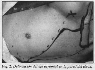 Delineación del eje acromial en la pared del tórax - Colgajo Musculocutáneo