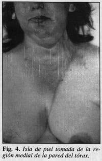 Isla de piel de la remusculocutáneo del pectoral mayor - Colgajo Musculocutáneo