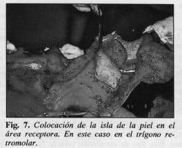 Colocación de piel en el trígono retromolar - Colgajo Musculocutáneo