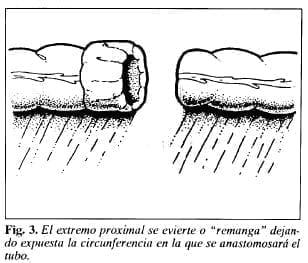 Tubo de Derivación Intracolónica