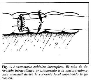 Anastomosis colónica incompleta - Tubo de Derivación Intracolónica