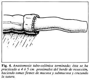 Anastomosis tubo-colónica terminada - Tubo de Derivación Intracolónica