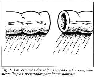 Colon preparado para la anastomosis -Tubo de Derivación Intracolónica