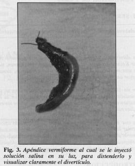 Apéndice vermiforme, visualizar del divertículo - Diverticulosis y Diverticulitis Apendicular