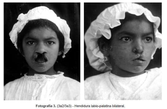 Hendidura labio-palatina bilateral, Fotográfica Sanmartín-Barberi