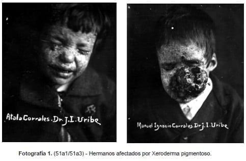 Xeroderma pigmentoso, Fotográfica Sanmartín-Barberi