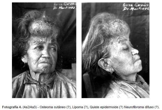 Osteoma cutáneo, Lipoma, Quiste epidermoide, Neurofibroma difuso, Fotográfica Sanmartín-Barberi