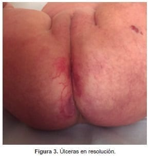 Úlceras