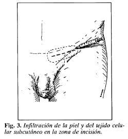 Infiltración de la piel y del tejido celular