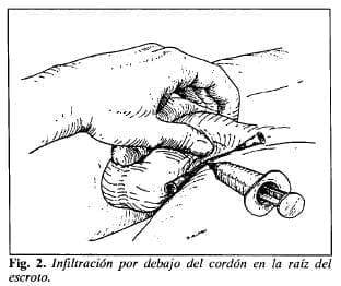 Infiltración en la raíz del escroto