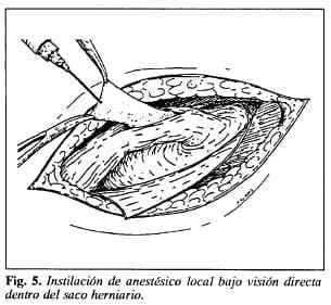 Anestésico local dentro del saco herniario