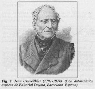 Jean Cruveilhier - Úlcera Gastroduodenal