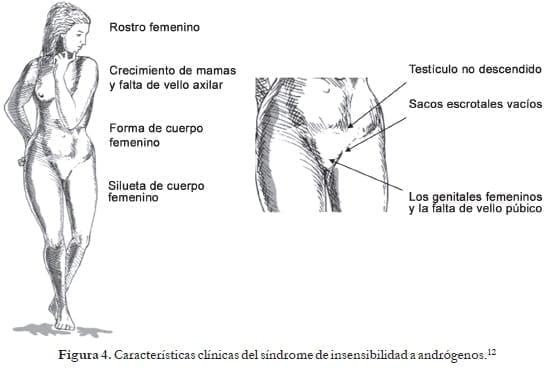 Características clínicas del síndrome de insensibilidad a andrógenos