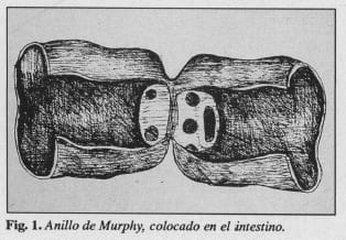 Anillo de Murphy en el intestino