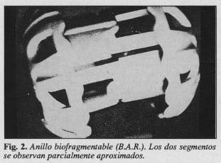 Anillo biofragmentable (BAR)