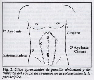 Sitios de punción abdominal