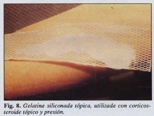 Gelatina siliconada tópica