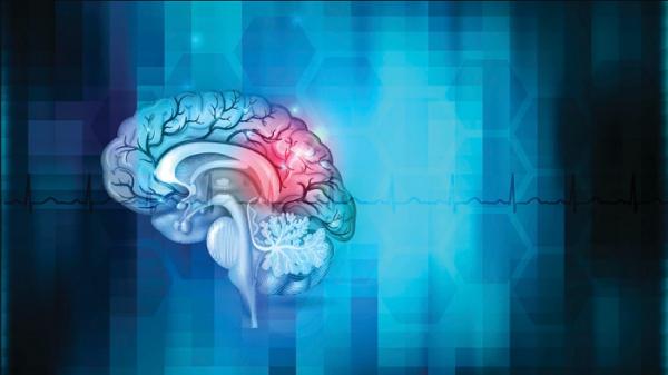 Accidente Cerebro Vascular o ACV