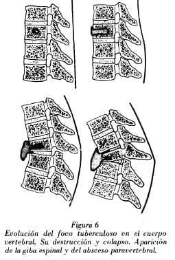 Evolución del foco tuberculoso en el cuerpo vertebral