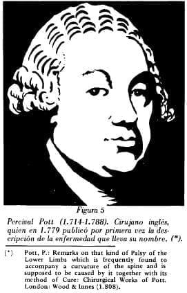 Percival Pott (1.714-1.788)