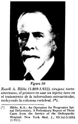 Rusell A. Hibbs (1.869-1.932)