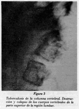 Tuberculosis de la columna vertebral
