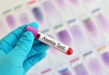 Anemia: Síntomas, Causas y Tratamiento