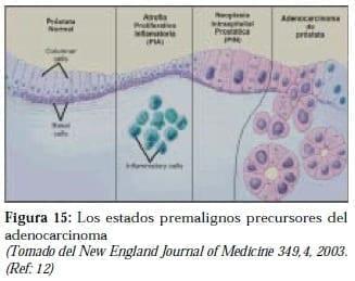 Estados Premalignos precursores del Adenocarcinoma