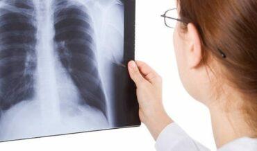 Derrame Pleural en Radiografías