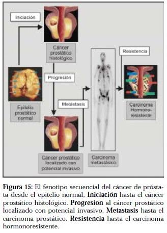 cancer prostata tipo 2