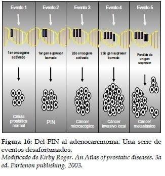 PIN al Adenocarcinoma