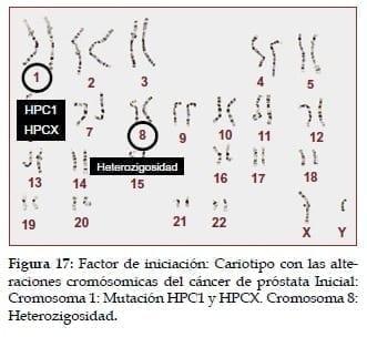 Cariotipo con las alteraciones cromósomicas del Cáncer de Próstata