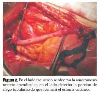 Anastomosis Uretero-Apendicular