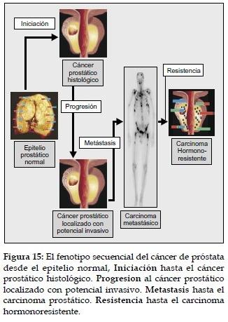 Fenotipo secuencial del Cáncer de Próstata