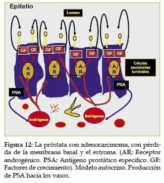 Próstata con Adenocarcinoma