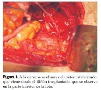 Uréter Cateterizado