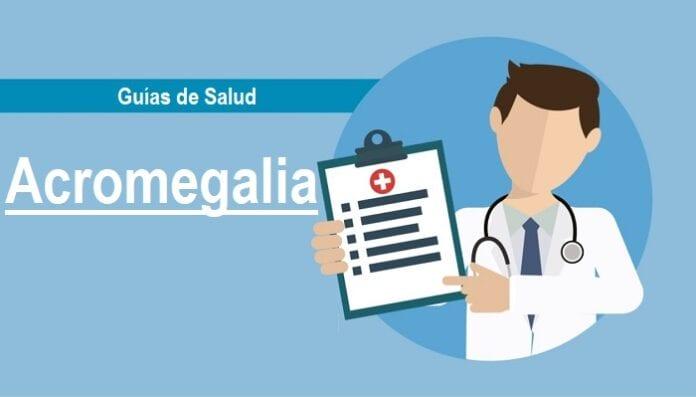 Acromegalia, Guía de Salud