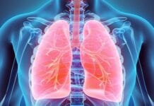 Tromboembolia Pulmonar, Guía de Salud
