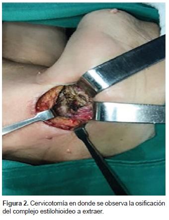 Cervicotomía se observa la Osificación del complejo Estilohioideo