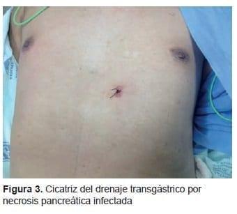 Cicatriz del Drenaje Transgástrico por Necrosis Pancreática Infectada