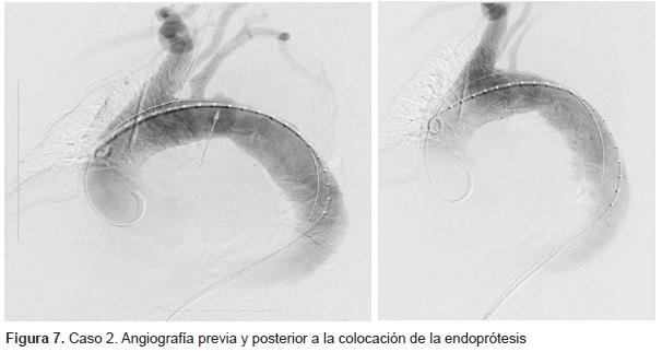 Angiografía previa y posterior a la colocación de la Endoprótesis